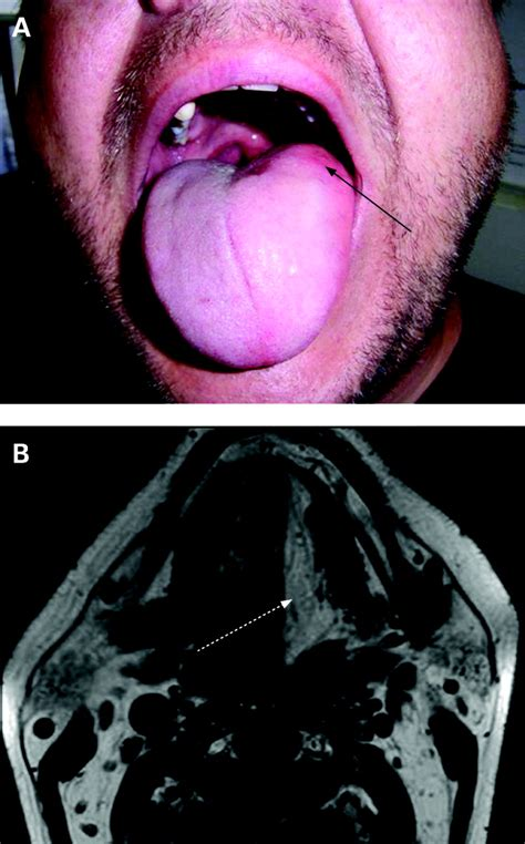 Tongue pseudohypertrophy in idiopathic hypoglossal nerve