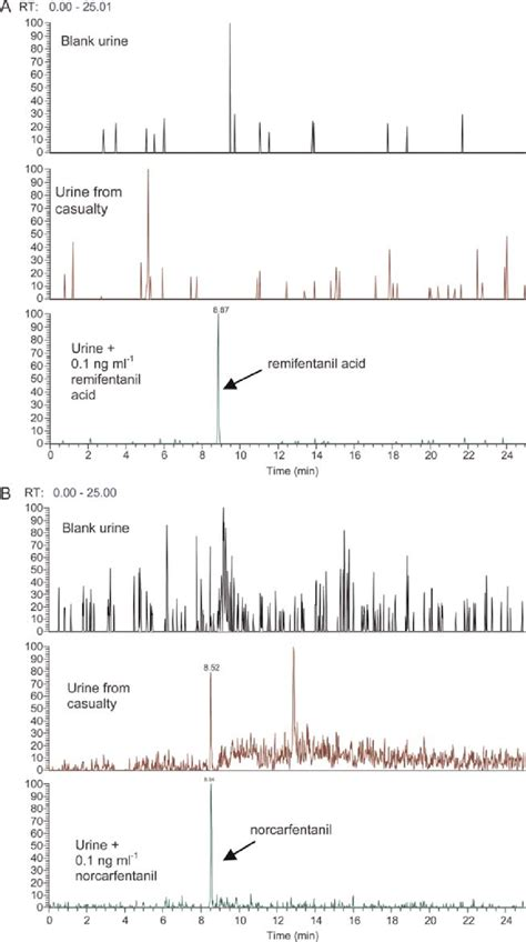 LC– MS-MS SRM chromatograms for the urine sample from